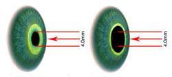 4mm exit Pupil